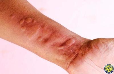 Enfermedades virales pueden presentar síntomas en la piel •