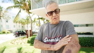 """Se salvó """"de milagro"""": El estremecedor relato de un sobreviviente del derrumbe en Miami"""