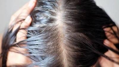 Recomendaciones para combatir la caída de cabello pos covid-19