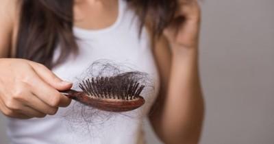 La Nación / Recomendaciones a tener en cuenta si se sufre de alopecia pos-COVID