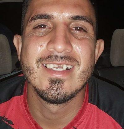 Joven pierde tres dientes tras recibir una tremenda patada en el rostro