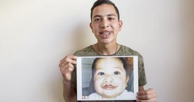 La Nación / Smile Train llegó a Paraguay para ofrecer cirugías y tratamientos de fisuras labio alvéolo palatinas
