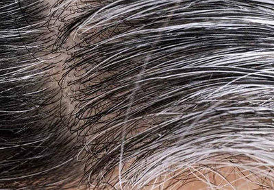 El estrés y covid-19 pueden favorecer a la aparición de las canas