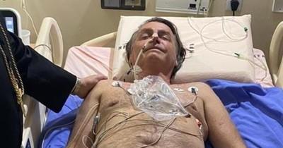 """La Nación / Evolución """"satisfactoria"""" de Bolsonaro tras ataque de hipo"""
