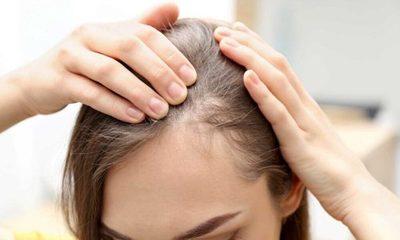 Recomendaciones para tener en cuenta si se sufre de alopecia