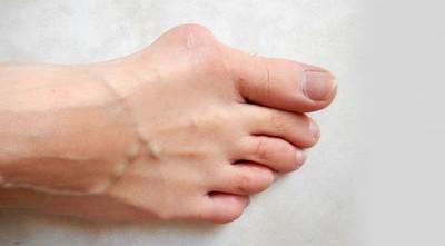 Juanetes: qué son, tratamientos y prevención