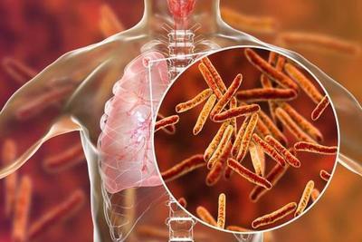 Diputados sancionan ley que establece protección a los pacientes con tuberculosis – Prensa 5