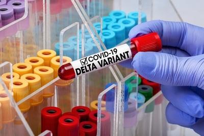 Con 6 casos confirmados de la variante Delta, Salud sospecha circulación comunitaria