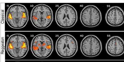 ¡Sorprendente! El reguetón genera más actividad cerebral que oír música clásica