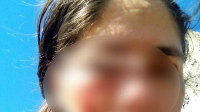 Le rompió la cara con el celular a su concubina porque miró su WhatsApp