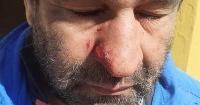 La Nación / Escribana denunciada por atacar a su hermano con destornillador