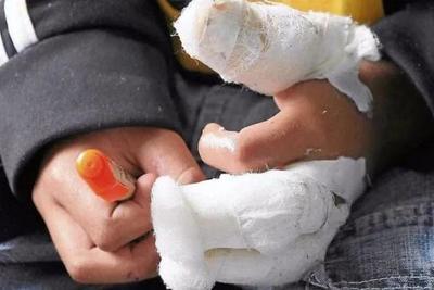 Caaguazú; Niño de 4 años sufrió graves lesiones tras explotar un cebollón en la mano – Prensa 5