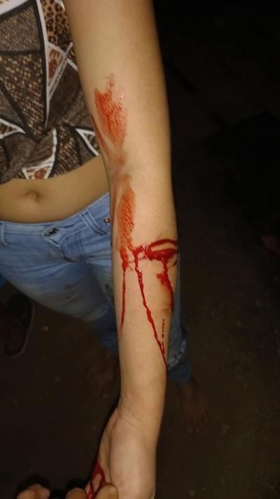 Concepción: Pelea entre vecinos termina con dos menores agredidas