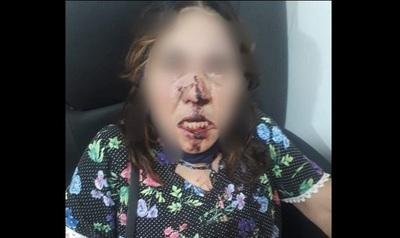 """Hijo """"alhaja"""" le reventó la cara a su mamá de 66 años con un palo de escoba"""