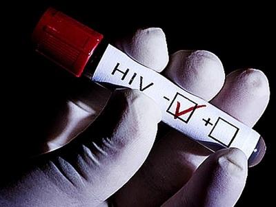 Cinco razones para hacerse la prueba de VIH