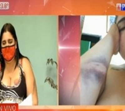 Luque: Mujer denuncia a su vecino tras terrible agresión