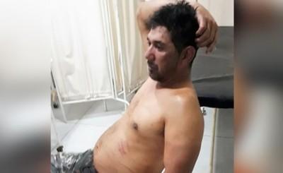 Sobrevive a tres balazos en la cabeza efectuados por su sobrino