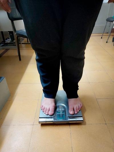 "Paraguay atraviesa ""preocupante epidemia de obesidad"", advierten"