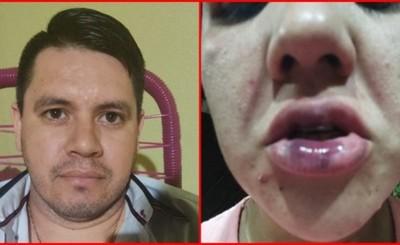 Fiscal afirma orden de detención del hombre que agredió a su pareja