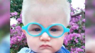 Bebé pudo ver bien por primera vez gracias a familia de buen corazón