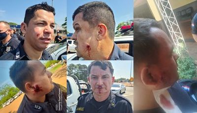 Policías fueron atacados y heridos por nativos en Caaguazú