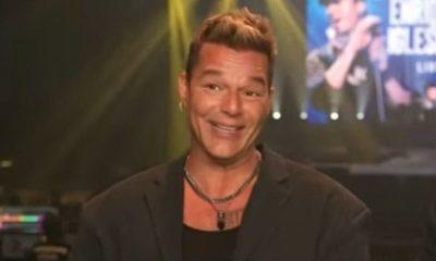 Impacto mundial: cirugía estética transformó el rostro de Ricky Martin