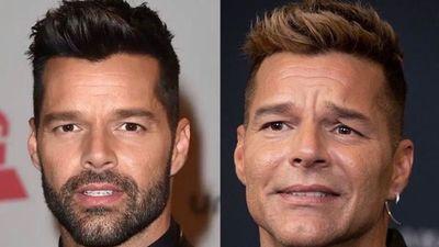 """""""Nueva"""" cara de Ricky Martin desata asombro y memes"""
