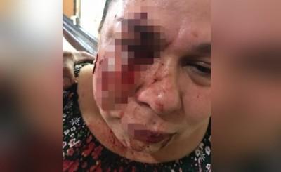 Mujer recibe brutal golpiza por reclamar hurto de gallina