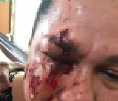 En Presidente Franco piden prisión para sujeto que desfiguró a golpes a su vecina