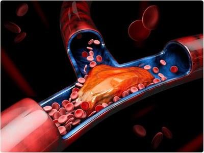 Día Mundial de la Trombosis: buscan concientizar para prevenir sus peligrosas consecuencias