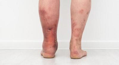 """""""Día Mundial de la Trombosis"""": enfermedad que se puede prevenir – Prensa 5"""