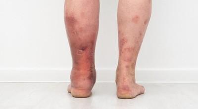 """""""Día Mundial de la Trombosis"""": enfermedad que se puede prevenir"""