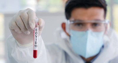 Salud reporta segundo día consecutivo sin fallecidos por Covid-19