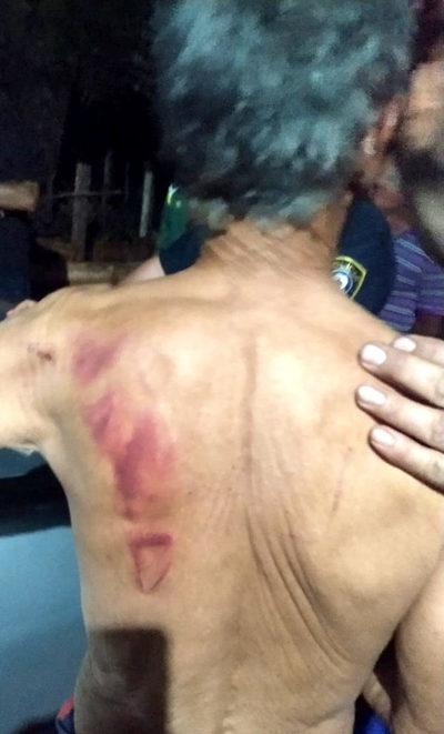 Asaltantes torturan a pareja de ancianos y le roban más de G. 140 millones y joyas