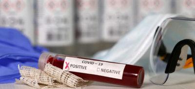 Covid-19: reportan un fallecido y 24 nuevos positivos