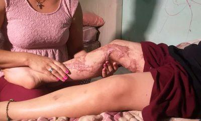 Niño de 11 años victima de desafío de Tik Tok sufrió quemaduras