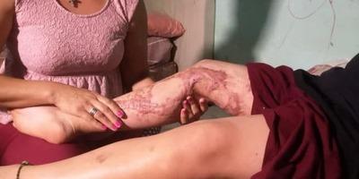 Niño de 11 años sufrió quemaduras tras un desafío de Tik Tok