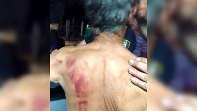 Torturaron a abuelos con plancha caliente y machete en asalto
