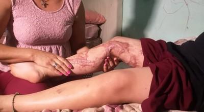 Niño sufrió quemaduras en desafío de TikTok y ahora necesita ayuda