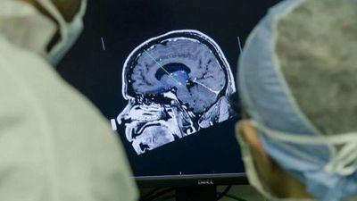 Un implante cerebral que elimina los pensamientos negativos para tratar la depresión genera controversia en la comunidad científica