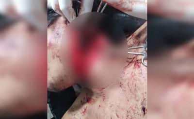 Indígena es hallado en charco de sangre en la terminal de Santa Rita